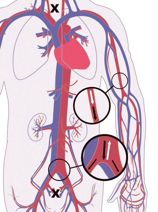 blodkärl och hjärta, blodomlopp